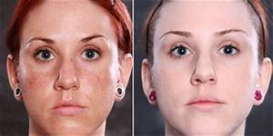 How Do I Get Rid of Laser Scarring, Melasma, and ...