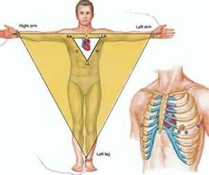 ECG Electrode EKG Lead Placement