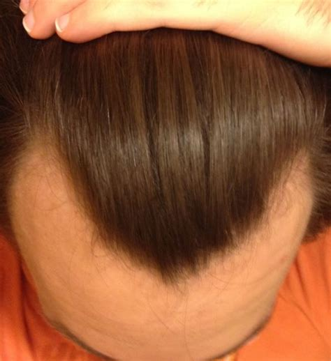 rogaine shedding after 8 months finasteride shedding 7 months buy tretinoin nz