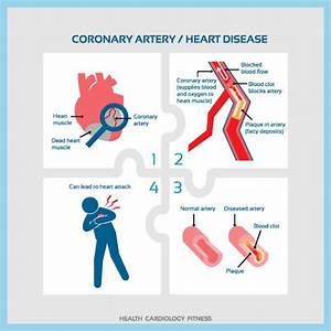 Where Is Heart Disease Common