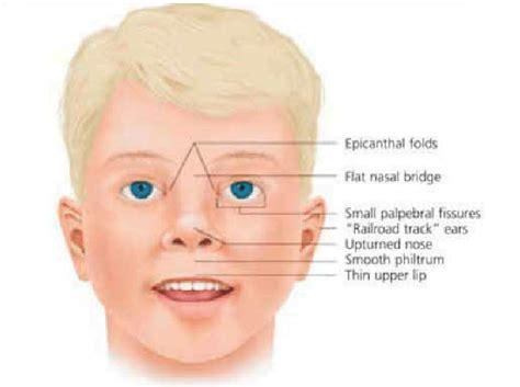 characteristic facial features   child  fetal