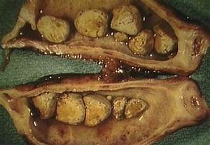 Препараты при холецистите печени