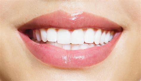 blanchiment des dents ce qu il faut savoir