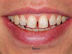 Before  After - Tooth Gaps