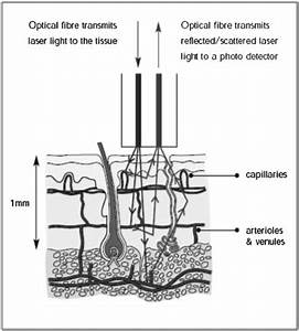 Microvascular imaging techniques and opportunities for