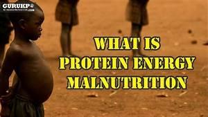 Protein Energy Malnutrition What Is Protein Energy Malnutrition B Sc Nursing