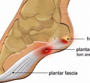 Боль в пальцах ног при диабете лечение