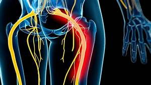 Diagnosis And Treatment Of Sciatica