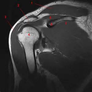 MRI Shoulder Anatomy
