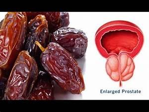 Heal Prostate Disease (Prostatitis, BPH, Enlarged Prostate, Prostate ...  Prostate Diseases Enlarged prostate