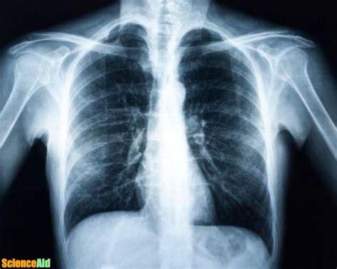 xray spectrum electromagnetic ray rays scienceaid radiation body shot