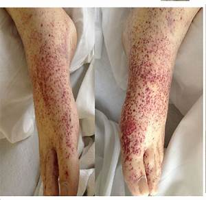 An Adult Male With Abdominal Pain And Skin Rash