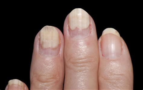 Toenail Lifting From Nail Bed by Wellness Lab Health Info Fingernails 5 Signs That Point