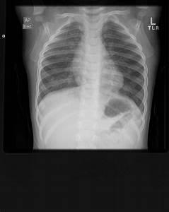 of Viral bronchiolitis Bronchiolitis