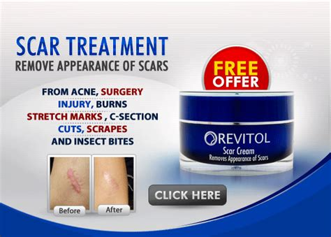 revitol scar cream review  scar tissue home removal