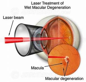 Retinal laser photocoagulation - #SUVR0002 | Stock eye images