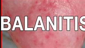 BALANITIS Que e... Balanitis