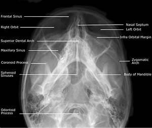 Radiographic Anatomy Of Facial Bones Postero