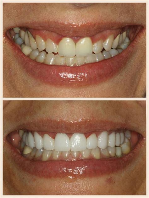 porcelain veneers    veneers teeth dental