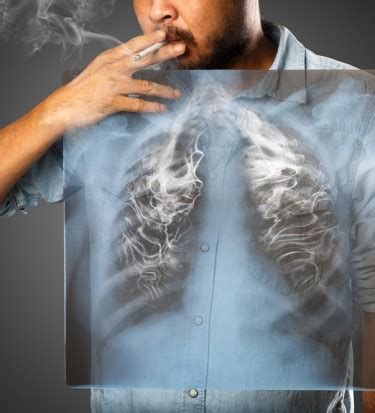 warning signs  lung cancer rm healthy