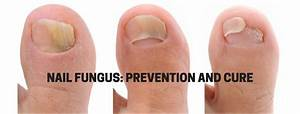 1 Guide For Nail Fungus Treatment Over The Counter