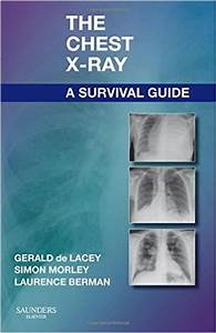 Download Ebook The Chest X Ray A Survival Guide Pdf