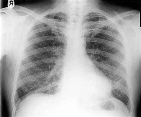 occupational lung disease net health book