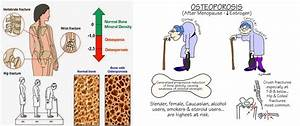 Osteoporosis  U2013 Everything A Women Should Know