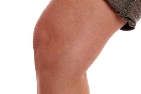 bluterguss im knie haemarthros symptome therapie