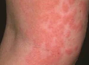 7 Types of Dermatitis - Skin Renewal Method by Bay Harbour Med Spa Dermatitis