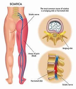 knee joint pain relief cream
