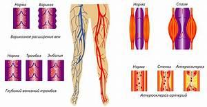 Артериальная гипертония и избыточная масса тела