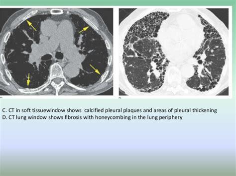 imaging features  asbestosis