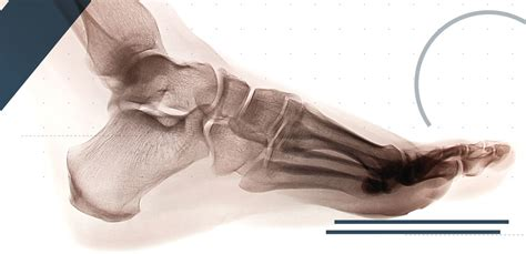 The area of the midfoot is also supported by overlapping tendons. Lisfranc Injuries in Sport