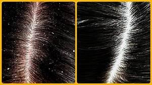 Magical Cure For Dandruff  U0026 Hair Fall   Home Remedies For