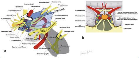 schematic drawings   cavernous sinus viewed