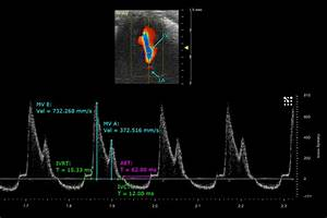Mitral Flow And Measurements Of A Mouse Neonate Heart