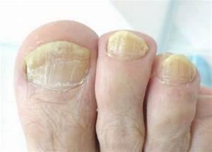 Грибок ногтей на ногах зож