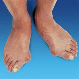 Foot Pain B Union