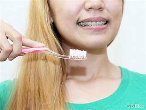 How To Clean Teeth With Braces  11 Steps  With Pictures