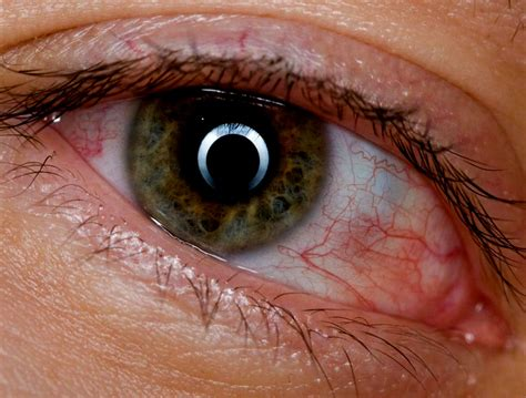 How To Cure Bloodshot Eyes Caused By Alcohol