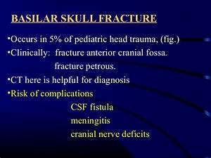Minor And Moderate Head Injuries In Children