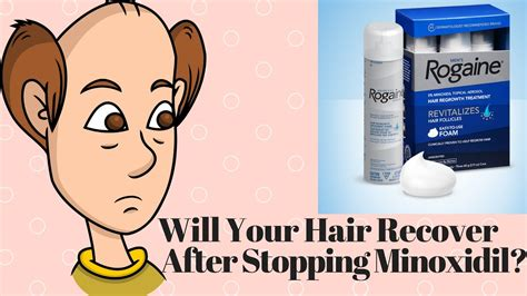 Nizoral Shedding by Will Your Hair Recover After Stopping Minoxidil