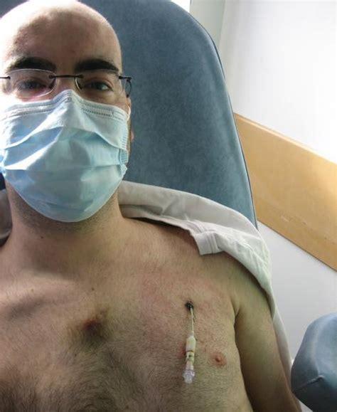 chambre sterile pour leucemie catheter adios se battre contre la leucemie par marco