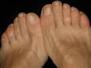 Likdoorn (eksteroog), pijnlijke eeltpit op de voet ...