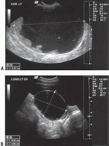 Pelvic Ultrasound In The Nongravid Patient