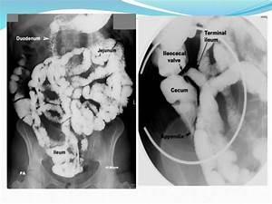 Imaging Anatomy Of Small Intestine