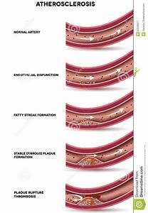 Stages Of Atherosclerosis Cartoon Vector