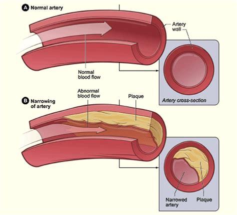 omega  fatty acids  atherosclerosis  birds lafebervet