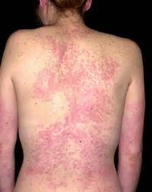 ... and treatment of urticaria, hives, urticarial rash and allergy rashes  Hives Drug allergies